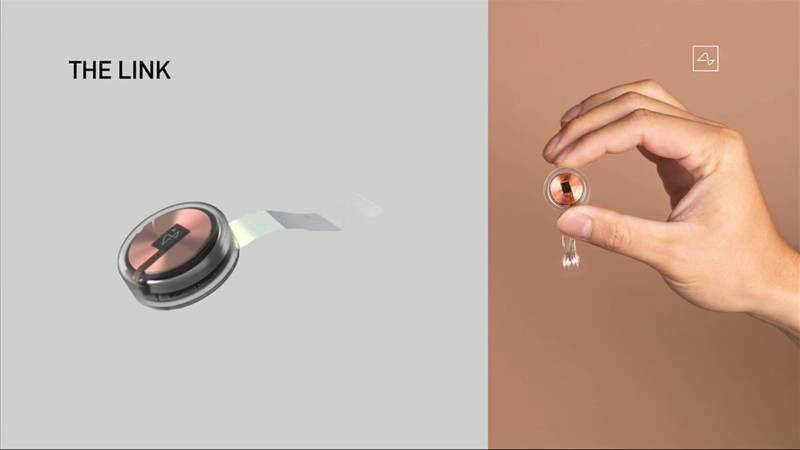 neuralink-implant-2.jpg