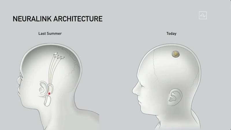 neuralink-implant.jpg
