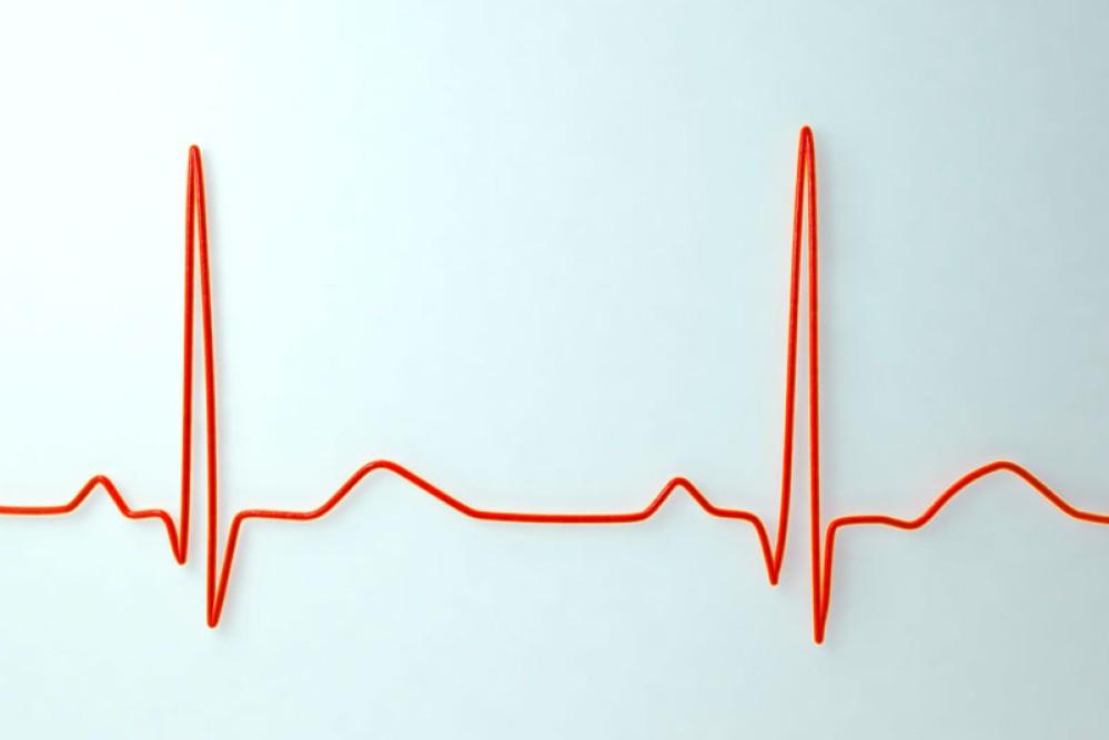 Jetson: Αναγνώριση ανθρώπων από τον καρδιακό παλμό τους με χρήση laser!
