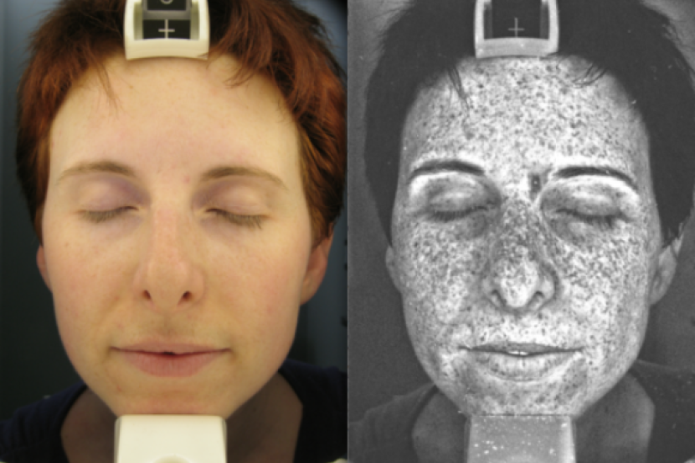 Φωτογραφία UV μαρτυρά τις δερματικές βλάβες από την έκθεση στον ήλιο