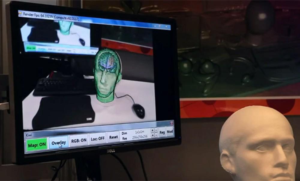 Ο αισθητήρας Kinect προσφέρει εικόνα Augmented Reality για νευροχειρουργικές επεμβάσεις! [Video]